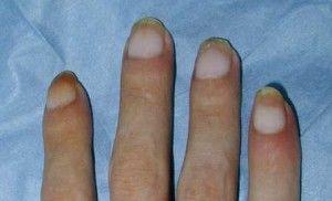 Le unghie su mani della ragione e il trattamento scendono