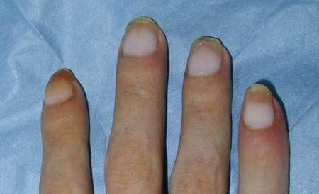 Trattamento di un fungo su unghie un crassula