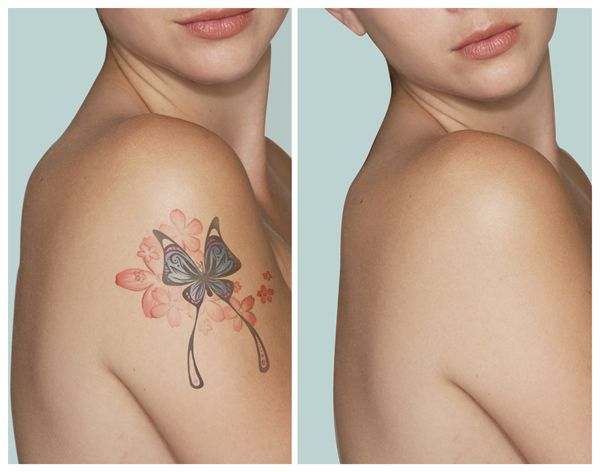 eliminare tatuaggi crema
