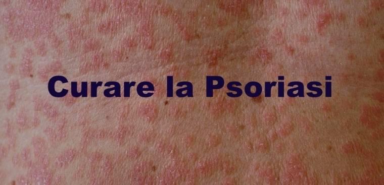 curare-la-psoriasi-stamibio-derm (1)